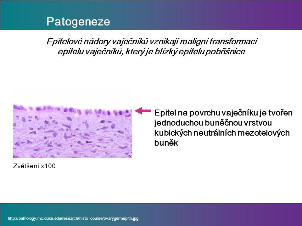 Patogeneze http://pathology.mc.duke.edu/research/histo_course/ovarygermepith.jpg Epitel na povrchu vaječníku je tvořen jednoduchou buněčnou vrstvou kubických neutrálních mezotelových buněk Epitelové nádory vaječníků vznikají maligní transformací epitelu vaječníků, který je blízký epitelu pobřišnice Zvětšení x100