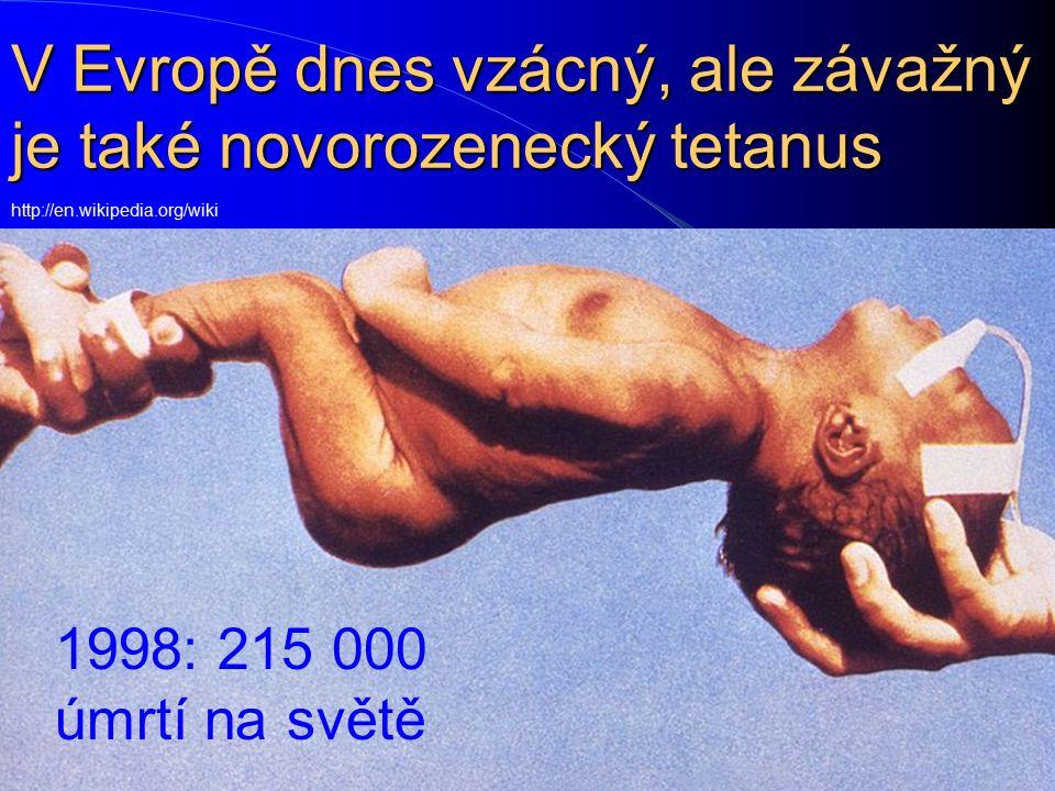 V Evropě dnes vzácný, ale závažný je také novorozenecký tetanus http://en.wikipedia.org/wiki 1998: 215 000 úmrtí na světě