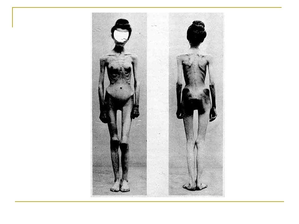 """Nebezpečné komunity Poslední dobou se ve spojení s anorexii vyskytuje i mnoho takzvaných """"pro ana blogů."""