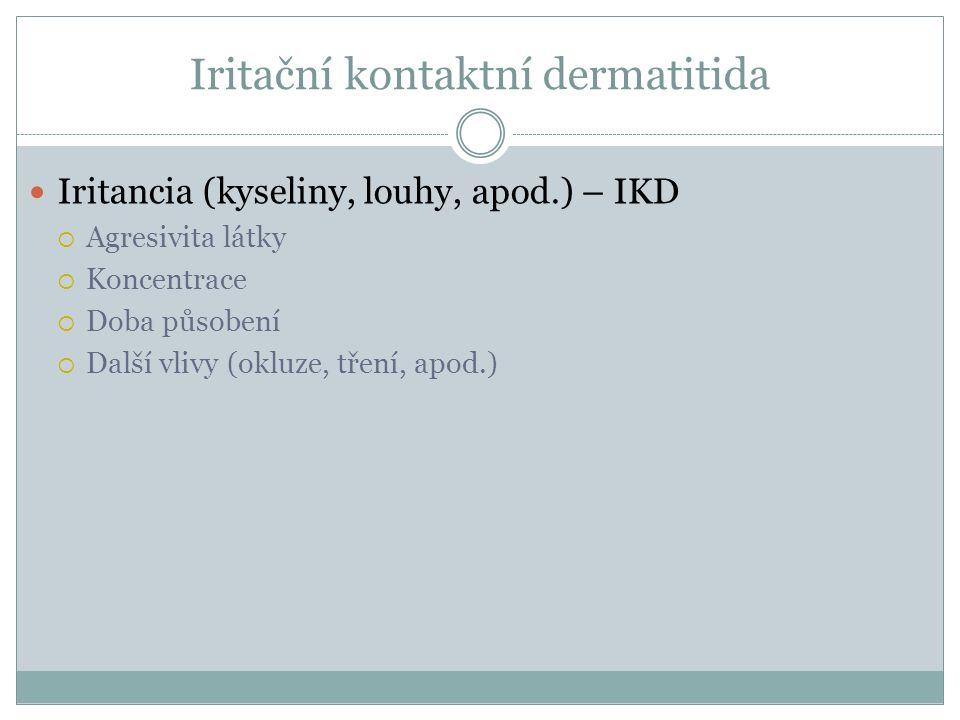 Iritační kontaktní dermatitida Iritancia (kyseliny, louhy, apod.) – IKD  Agresivita látky  Koncentrace  Doba působení  Další vlivy (okluze, tření,