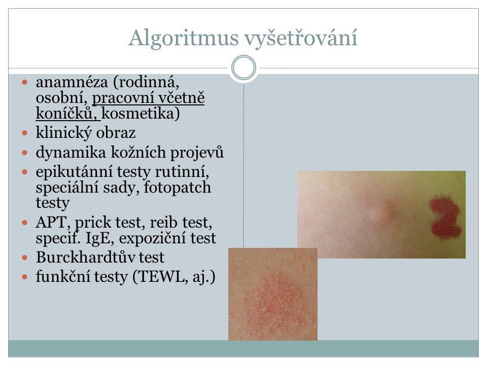 Algoritmus vyšetřování anamnéza (rodinná, osobní, pracovní včetně koníčků, kosmetika) klinický obraz dynamika kožních projevů epikutánní testy rutinní