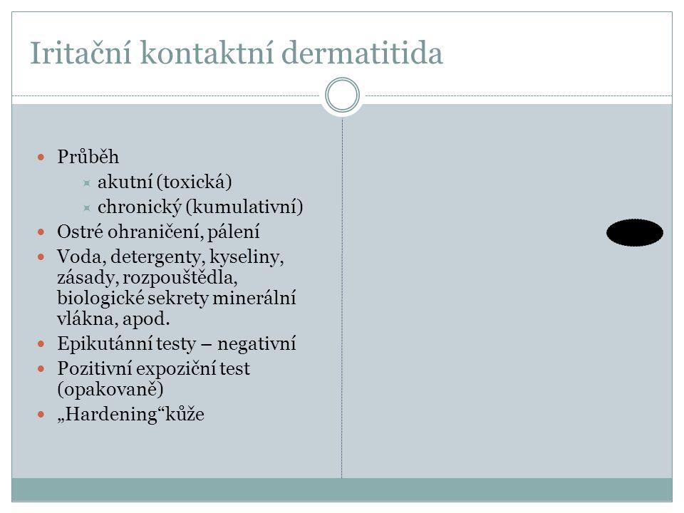 Iritační kontaktní dermatitida Průběh  akutní (toxická)  chronický (kumulativní) Ostré ohraničení, pálení Voda, detergenty, kyseliny, zásady, rozpou