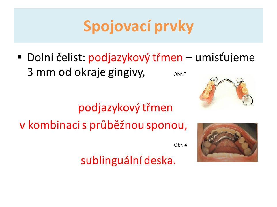 Spojovací prvky  Dolní čelist: podjazykový třmen – umisťujeme 3 mm od okraje gingivy, Obr.