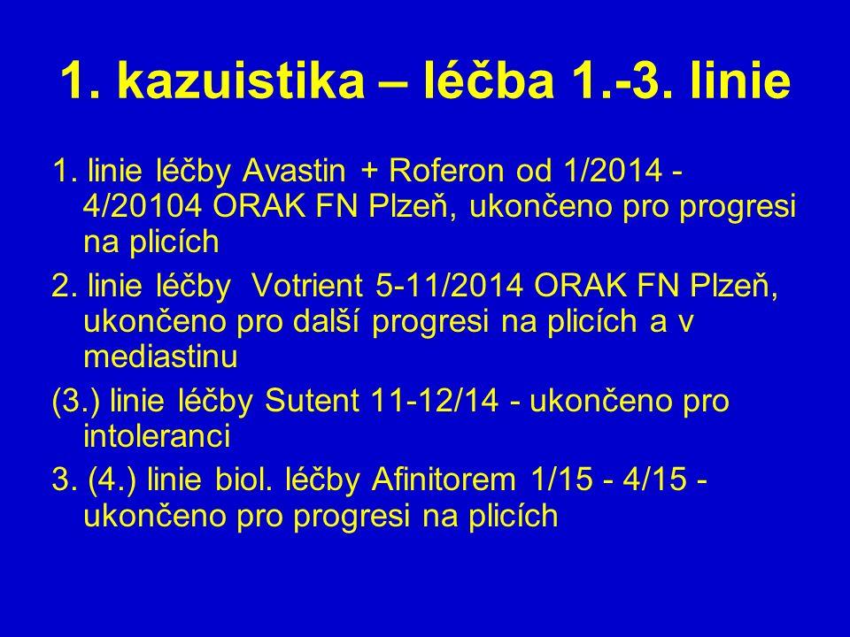 1. kazuistika – léčba 1.-3. linie 1. linie léčby Avastin + Roferon od 1/2014 - 4/20104 ORAK FN Plzeň, ukončeno pro progresi na plicích 2. linie léčby