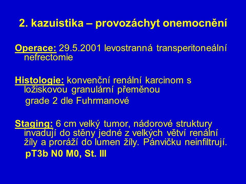 2. kazuistika – provozáchyt onemocnění Operace: 29.5.2001 levostranná transperitoneální nefrectomie Histologie: konvenční renální karcinom s ložiskovo