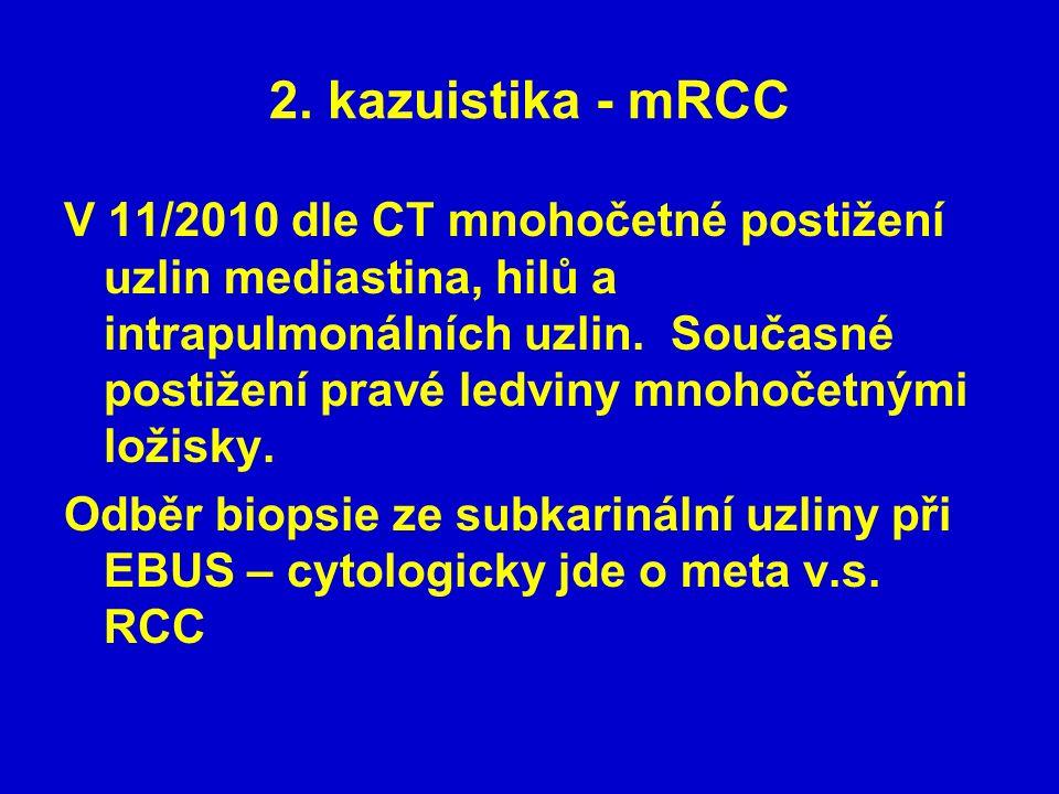 2. kazuistika - mRCC V 11/2010 dle CT mnohočetné postižení uzlin mediastina, hilů a intrapulmonálních uzlin. Současné postižení pravé ledviny mnohočet