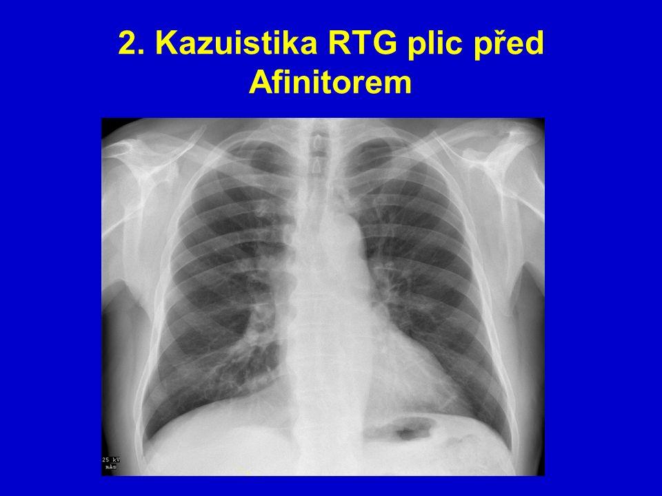 2. Kazuistika RTG plic před Afinitorem