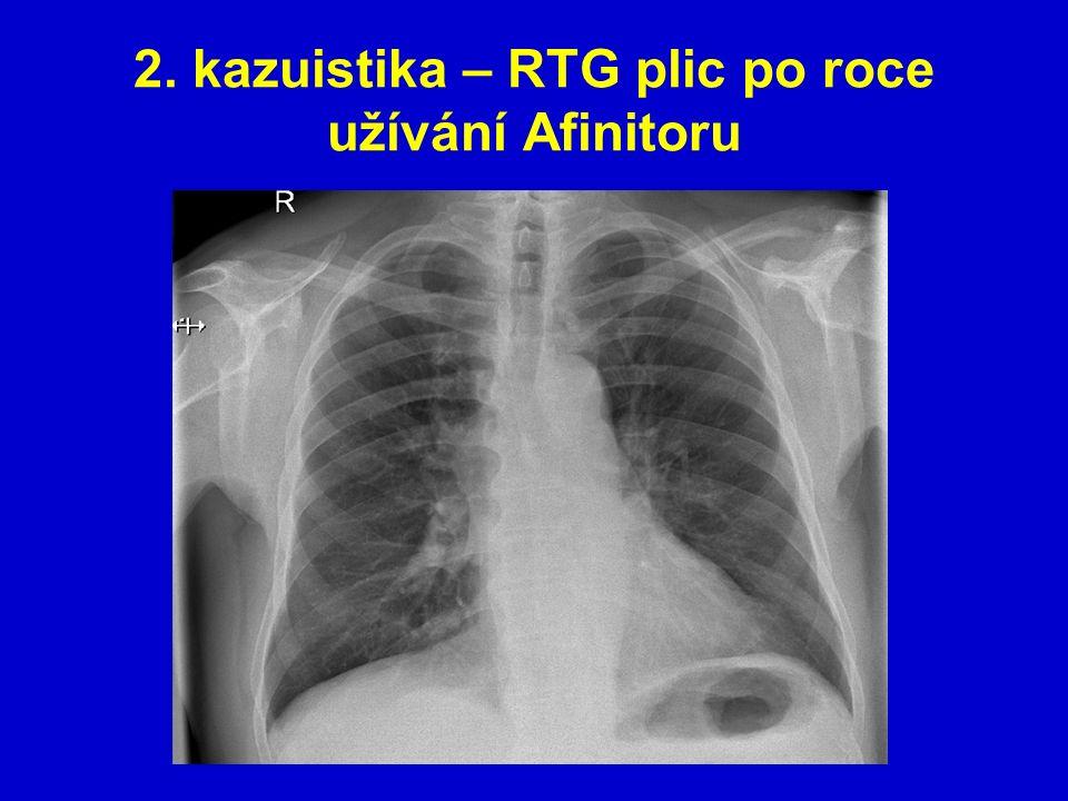 2. kazuistika – RTG plic po roce užívání Afinitoru