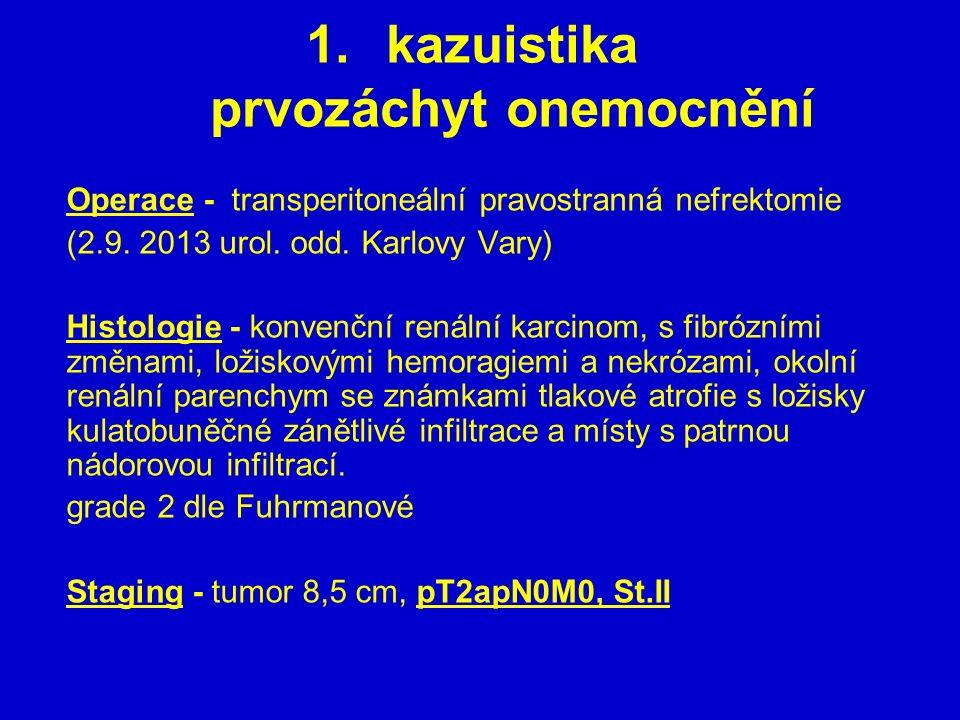 1.kazuistika prvozáchyt onemocnění Operace - transperitoneální pravostranná nefrektomie (2.9. 2013 urol. odd. Karlovy Vary) Histologie - konvenční ren