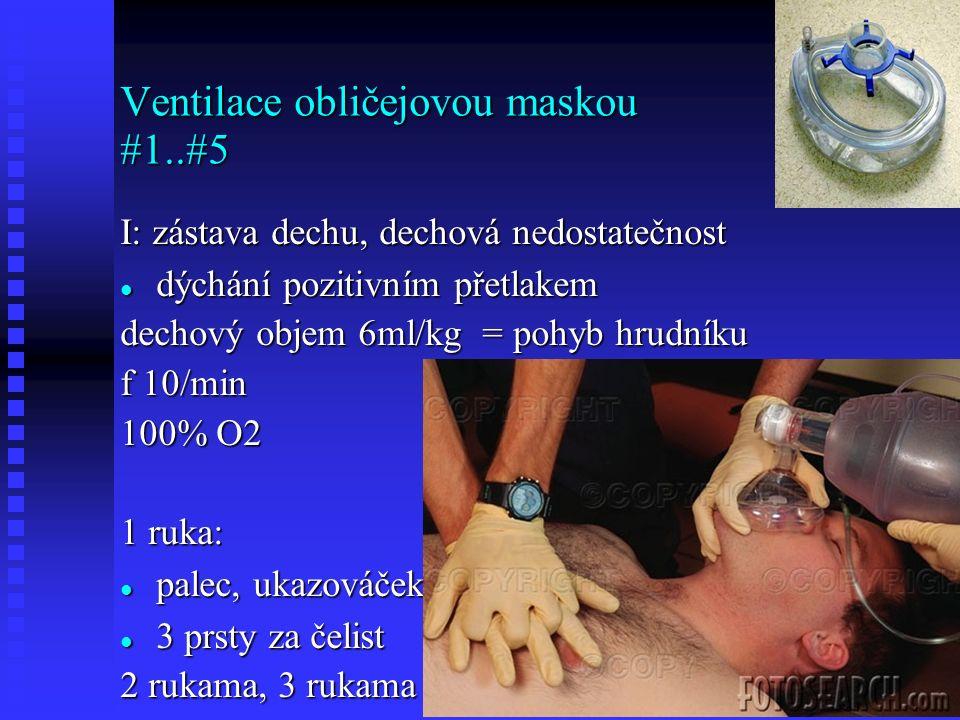 Ventilace obličejovou maskou #1..#5 I: zástava dechu, dechová nedostatečnost dýchání pozitivním přetlakem dýchání pozitivním přetlakem dechový objem 6ml/kg = pohyb hrudníku f 10/min 100% O2 1 ruka: palec, ukazováček.