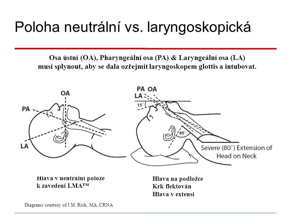 Osa ústní (OA), Pharyngeální osa (PA) & Laryngeální osa (LA) musí splynout, aby se dala ozřejmit laryngoskopem glottis a intubovat.