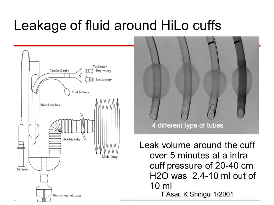 Leakage of fluid around HiLo cuffs Leak volume around the cuff over 5 minutes at a intra cuff pressure of 20-40 cm H2O was 2.4-10 ml out of 10 ml T As
