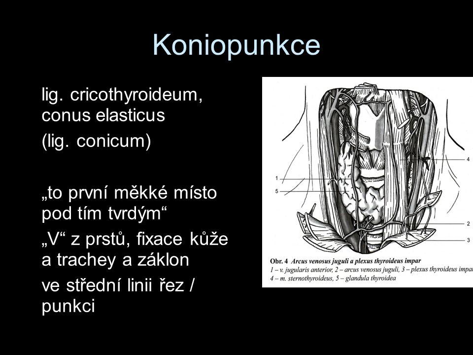 Koniopunkce lig. cricothyroideum, conus elasticus (lig.