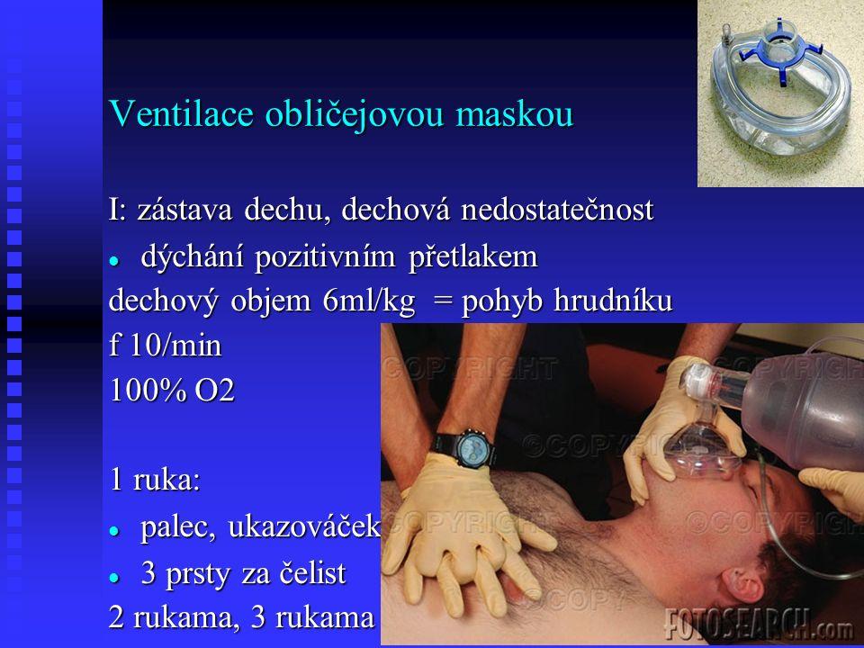 Ventilace obličejovou maskou I: zástava dechu, dechová nedostatečnost dýchání pozitivním přetlakem dýchání pozitivním přetlakem dechový objem 6ml/kg = pohyb hrudníku f 10/min 100% O2 1 ruka: palec, ukazováček.