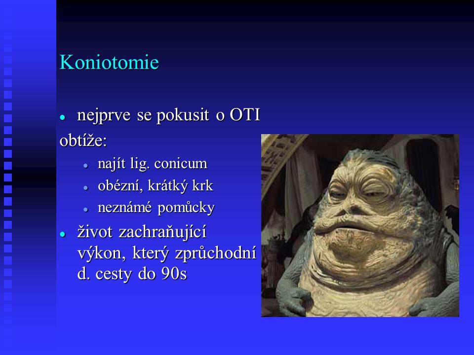 Koniotomie nejprve se pokusit o OTI nejprve se pokusit o OTIobtíže: najít lig.