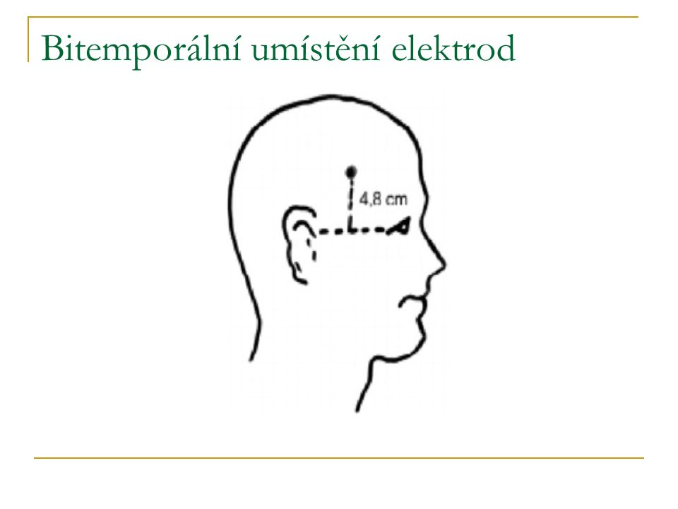 Bitemporální umístění elektrod