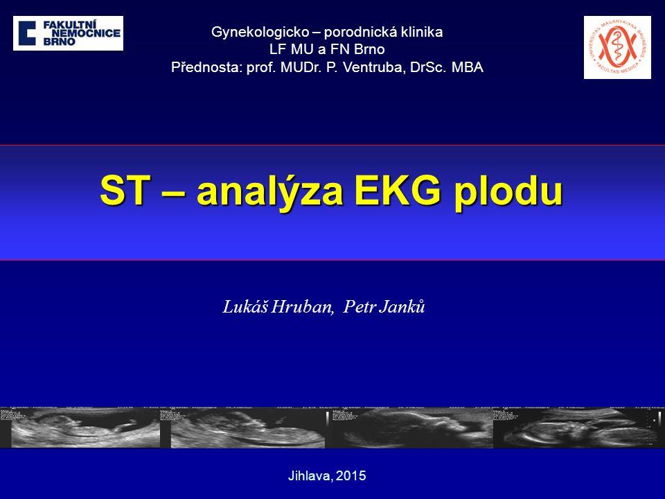 ST – analýza EKG plodu Lukáš Hruban, Petr Janků Gynekologicko – porodnická klinika LF MU a FN Brno Přednosta: prof.