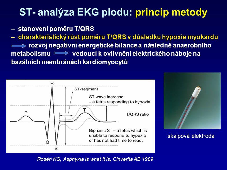 – stanovení poměru T/QRS – charakteristický růst poměru T/QRS v důsledku hypoxie myokardu rozvoj negativní energetické bilance a následně anaerobního metabolismu vedoucí k ovlivnění elektrického náboje na bazálních membránách kardiomyocytů Rosén KG, Asphyxia Is what it is, Cinverita AB 1989 ST- analýza EKG plodu: princip metody skalpová elektroda