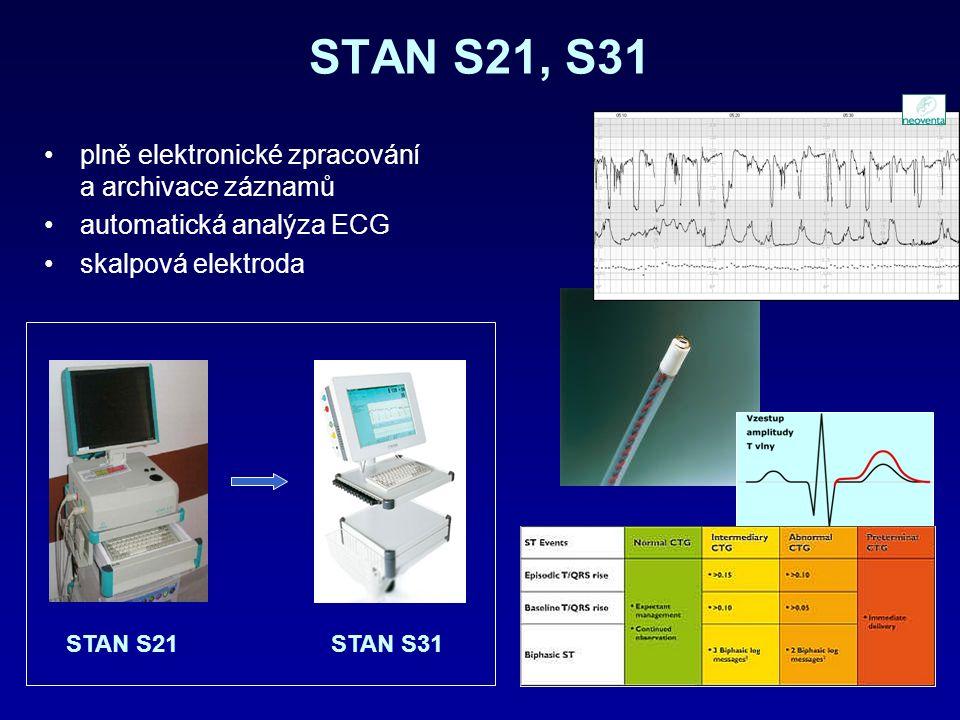 STAN S21, S31 plně elektronické zpracování a archivace záznamů automatická analýza ECG skalpová elektroda STAN S21STAN S31