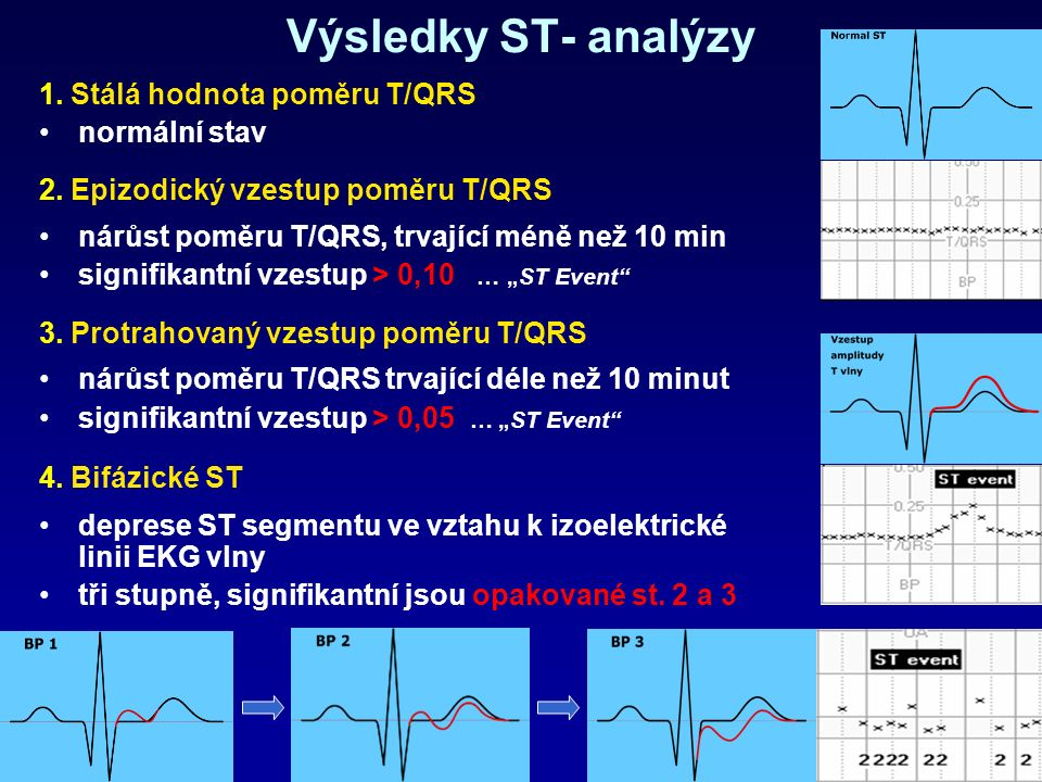 Výsledky ST- analýzy 1. Stálá hodnota poměru T/QRS normální stav 2.