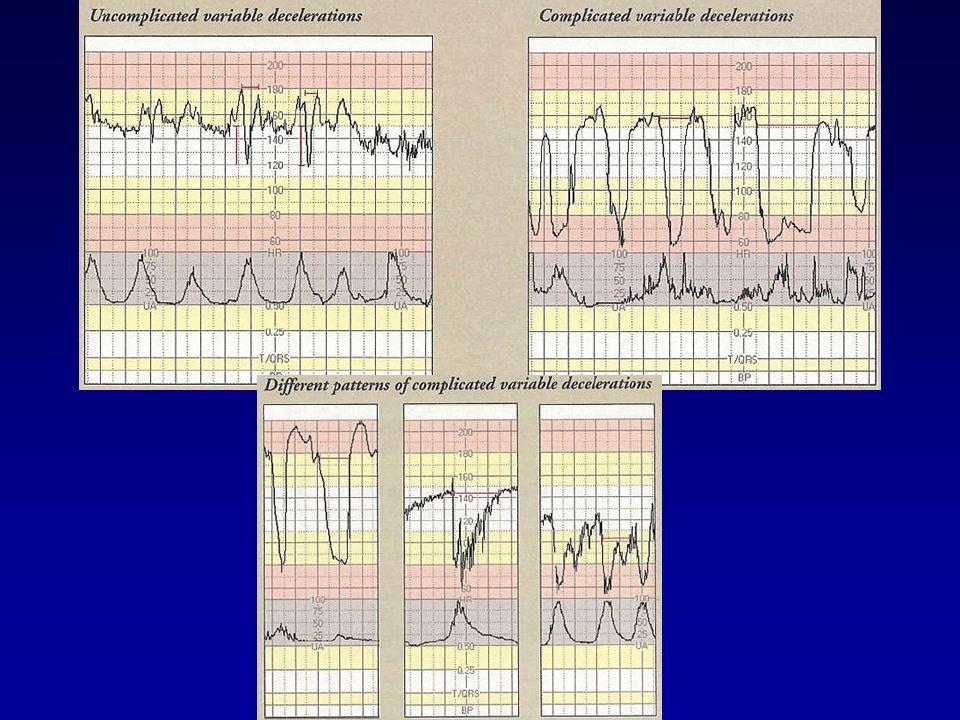 Hodnocení ST- analýzy: CTG versus ST změny dokončený 36.t.g.
