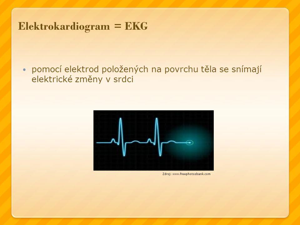 Elektrokardiogram = EKG pomocí elektrod položených na povrchu těla se snímají elektrické změny v srdci Zdroj: www.freephotosbank.com