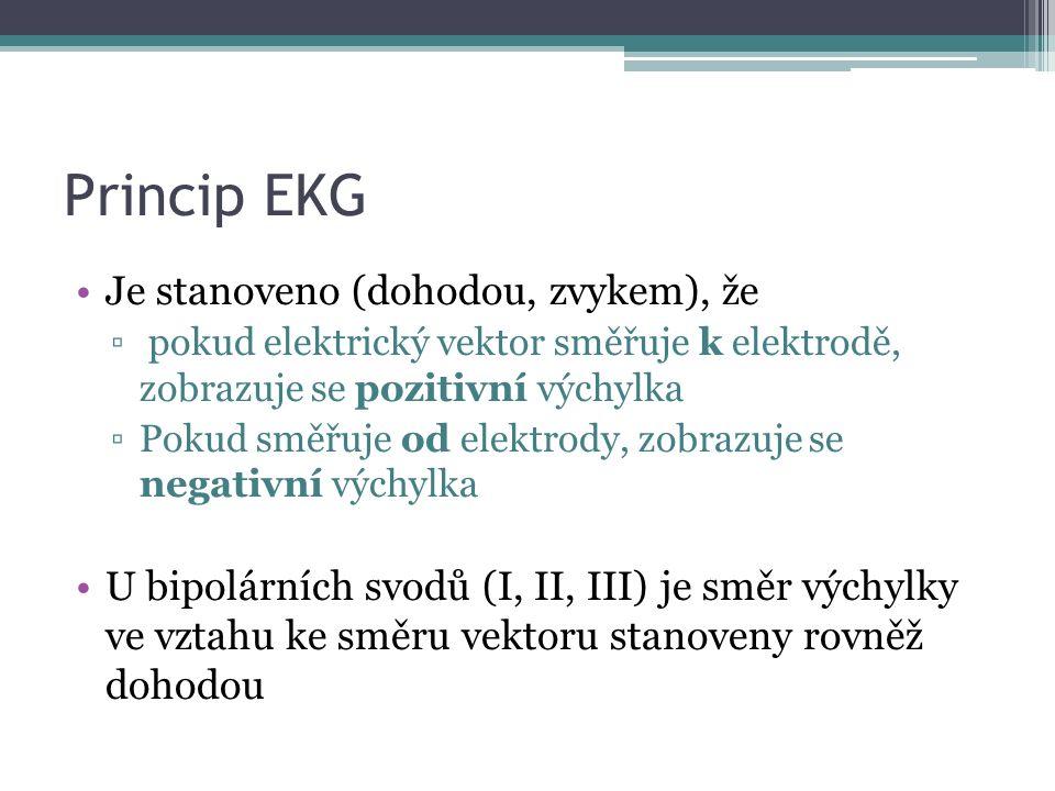 Princip EKG Je stanoveno (dohodou, zvykem), že ▫ pokud elektrický vektor směřuje k elektrodě, zobrazuje se pozitivní výchylka ▫Pokud směřuje od elektrody, zobrazuje se negativní výchylka U bipolárních svodů (I, II, III) je směr výchylky ve vztahu ke směru vektoru stanoveny rovněž dohodou
