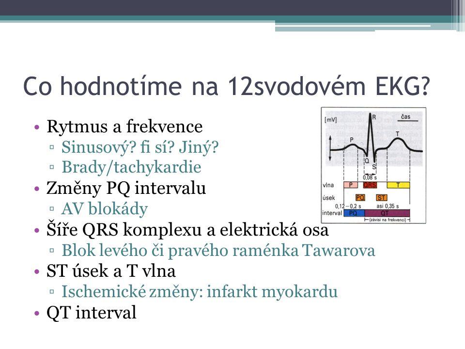 Co hodnotíme na 12svodovém EKG? Rytmus a frekvence ▫Sinusový? fi sí? Jiný? ▫Brady/tachykardie Změny PQ intervalu ▫AV blokády Šíře QRS komplexu a elekt