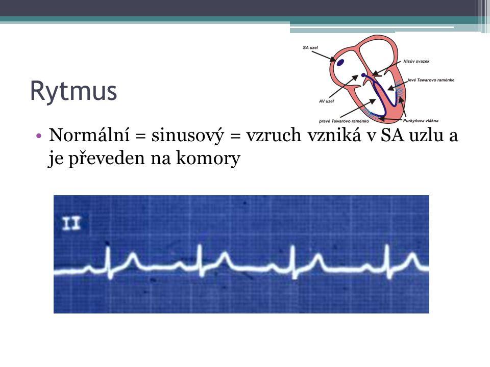 Rytmus Normální = sinusový = vzruch vzniká v SA uzlu a je převeden na komory
