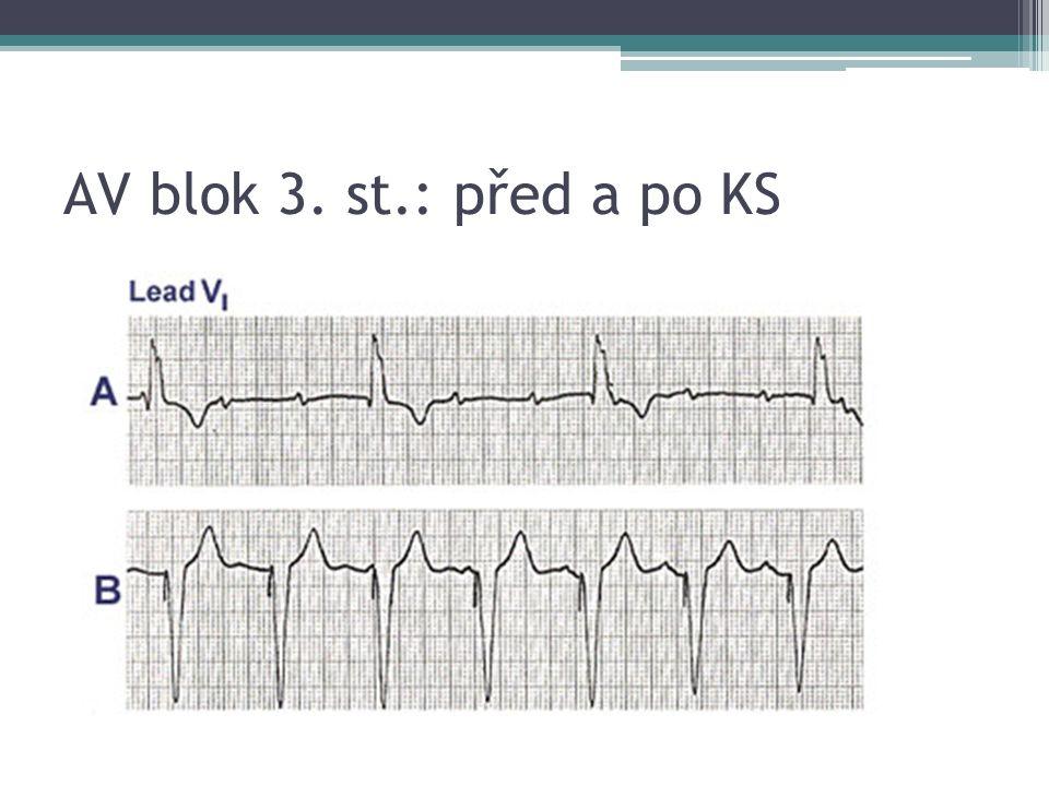 AV blok 3. st.: před a po KS