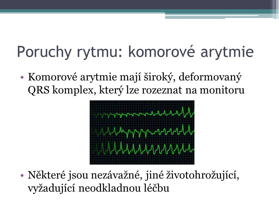 Poruchy rytmu: komorové arytmie Komorové arytmie mají široký, deformovaný QRS komplex, který lze rozeznat na monitoru Některé jsou nezávažné, jiné životohrožující, vyžadující neodkladnou léčbu