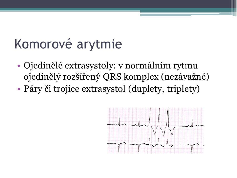 Komorové arytmie Ojedinělé extrasystoly: v normálním rytmu ojedinělý rozšířený QRS komplex (nezávažné) Páry či trojice extrasystol (duplety, triplety)