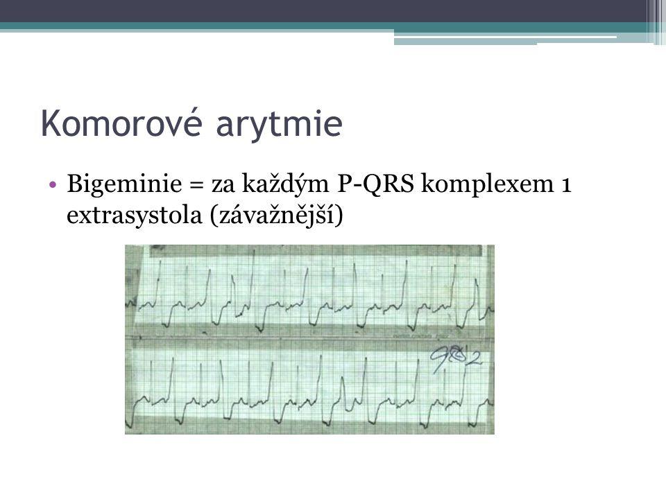 Komorové arytmie Bigeminie = za každým P-QRS komplexem 1 extrasystola (závažnější)