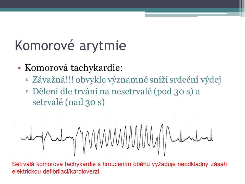 Komorové arytmie Komorová tachykardie: ▫Závažná!!.