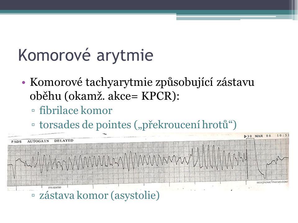Komorové arytmie Komorové tachyarytmie způsobující zástavu oběhu (okamž.