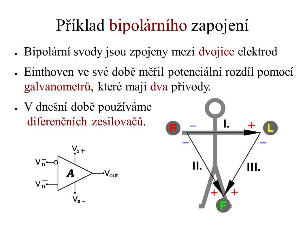 Příklad bipolárního zapojení ● Bipolární svody jsou zpojeny mezi dvojice elektrod ● Einthoven ve své době měřil potenciální rozdíl pomocí galvanometrů