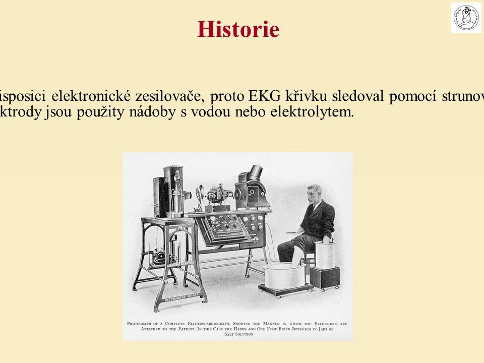 Einthoven neměl k disposici elektronické zesilovače, proto EKG křivku sledoval pomocí strunových galvanometrů.