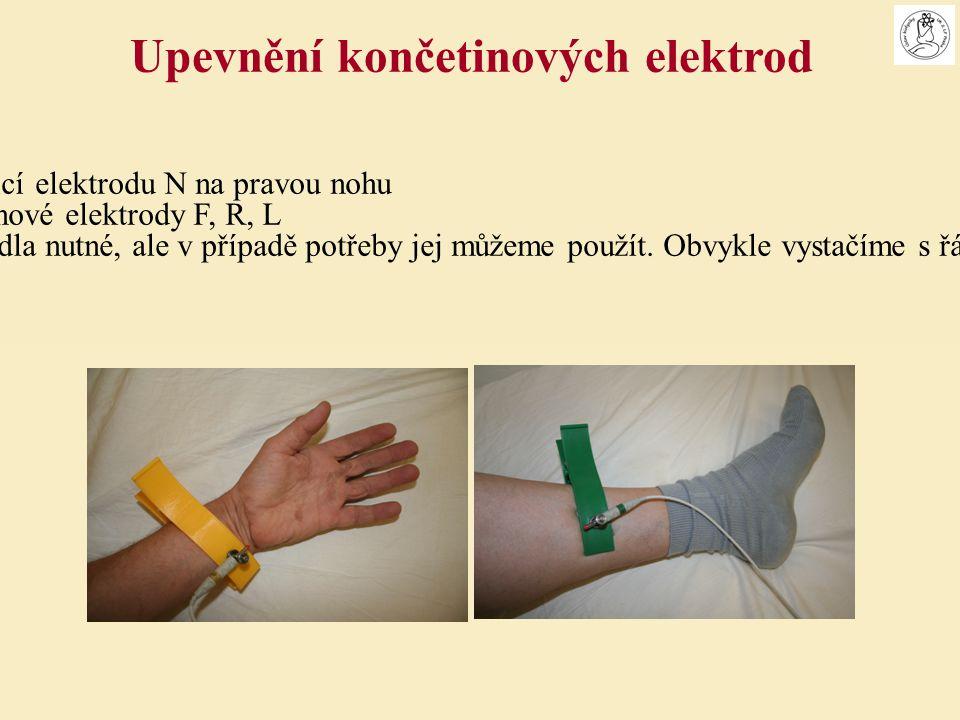 Jako první upevňujeme zemnící elektrodu N na pravou nohu Upevníme kleštinové končetinové elektrody F, R, L Použití EKG gelu není zpravidla nutné, ale v případě potřeby jej můžeme použít.