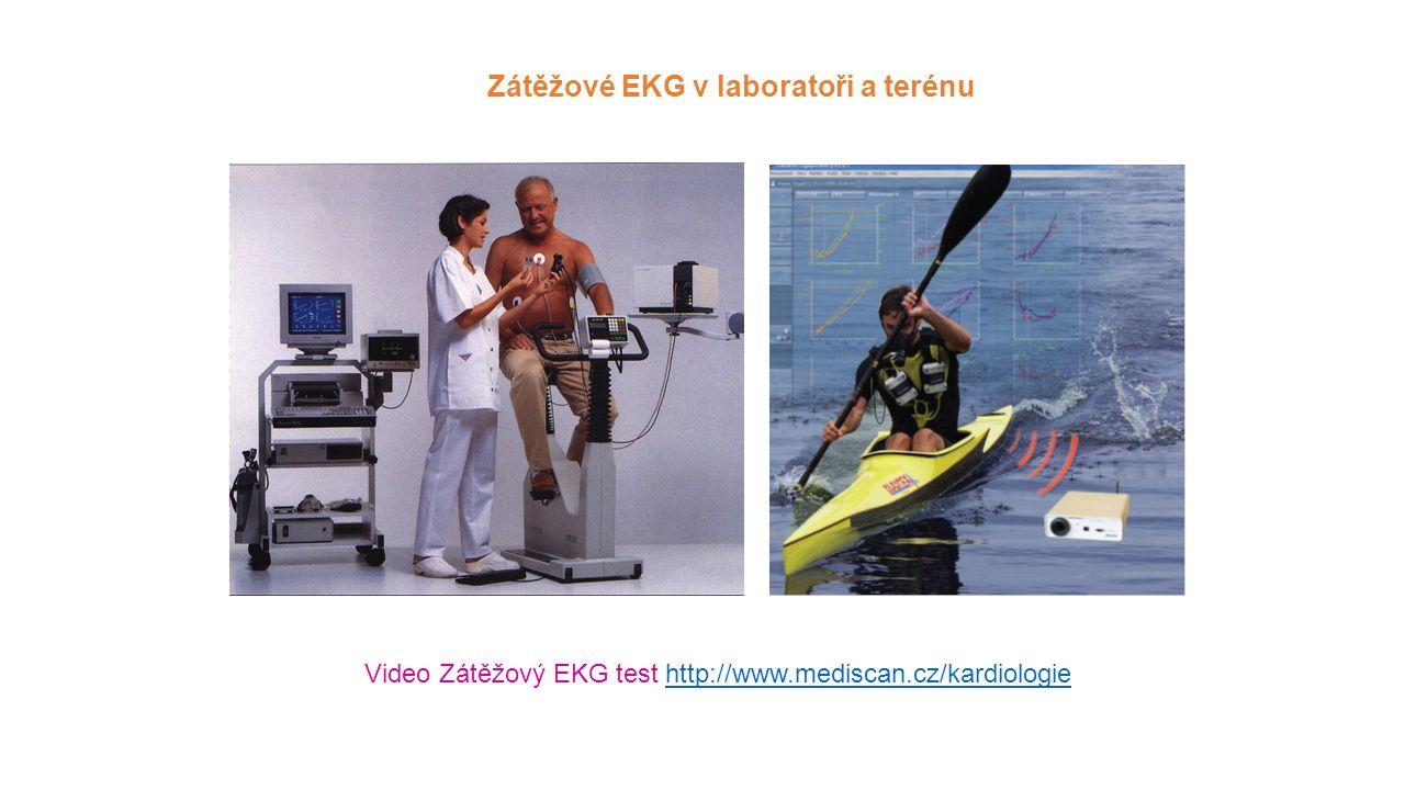 Zátěžové EKG v laboratoři a terénu Video Zátěžový EKG test http://www.mediscan.cz/kardiologiehttp://www.mediscan.cz/kardiologie