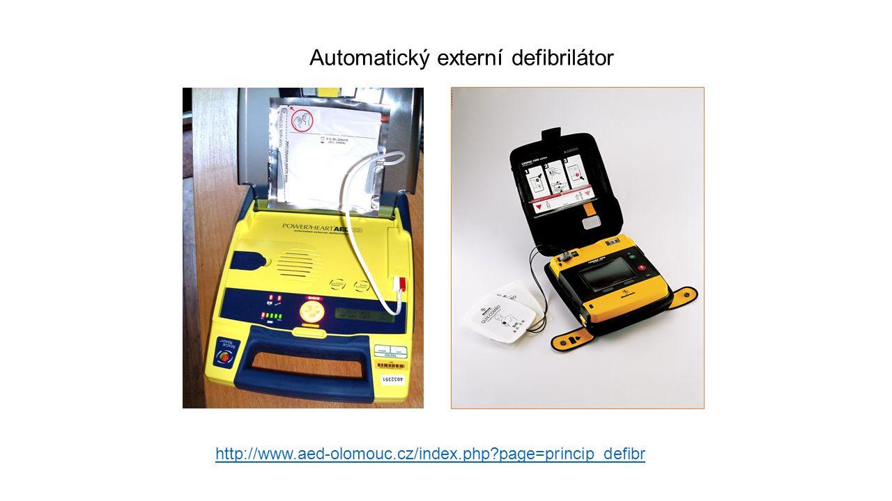 Automatický externí defibrilátor http://www.aed-olomouc.cz/index.php?page=princip_defibr