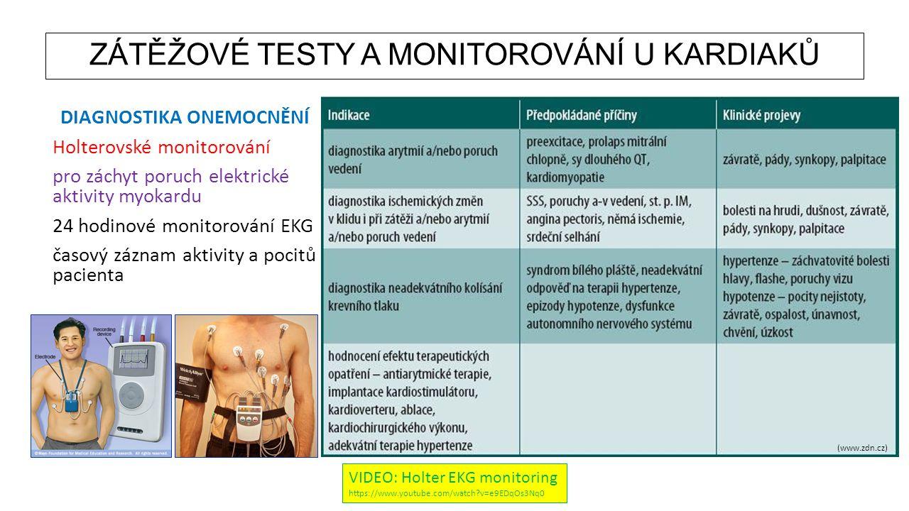 ZÁTĚŽOVÉ TESTY A MONITOROVÁNÍ U KARDIAKŮ DIAGNOSTIKA ONEMOCNĚNÍ Holterovské monitorování pro záchyt poruch elektrické aktivity myokardu 24 hodinové mo