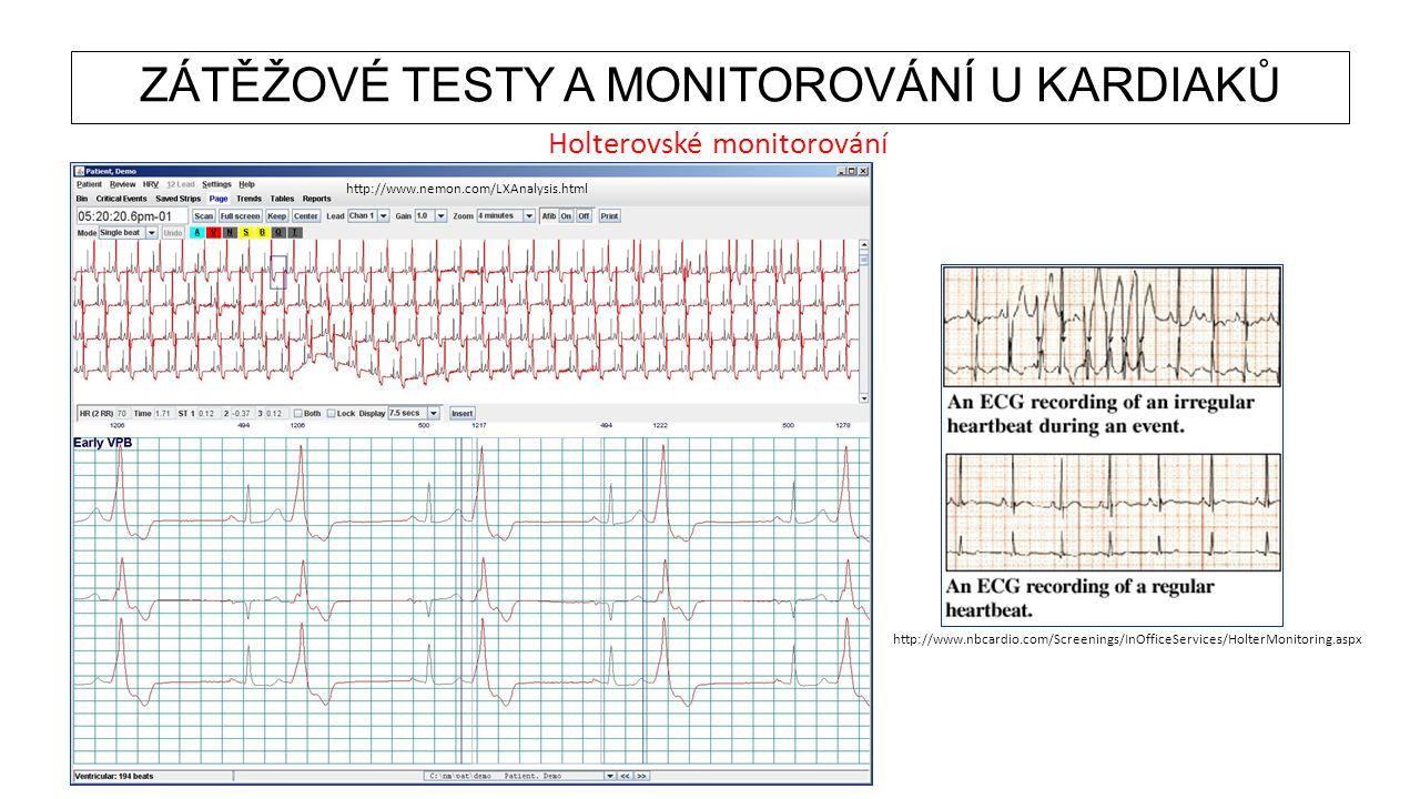 ZÁTĚŽOVÉ TESTY A MONITOROVÁNÍ U KARDIAKŮ Holterovské monitorování http://www.nbcardio.com/Screenings/InOfficeServices/HolterMonitoring.aspx http://www