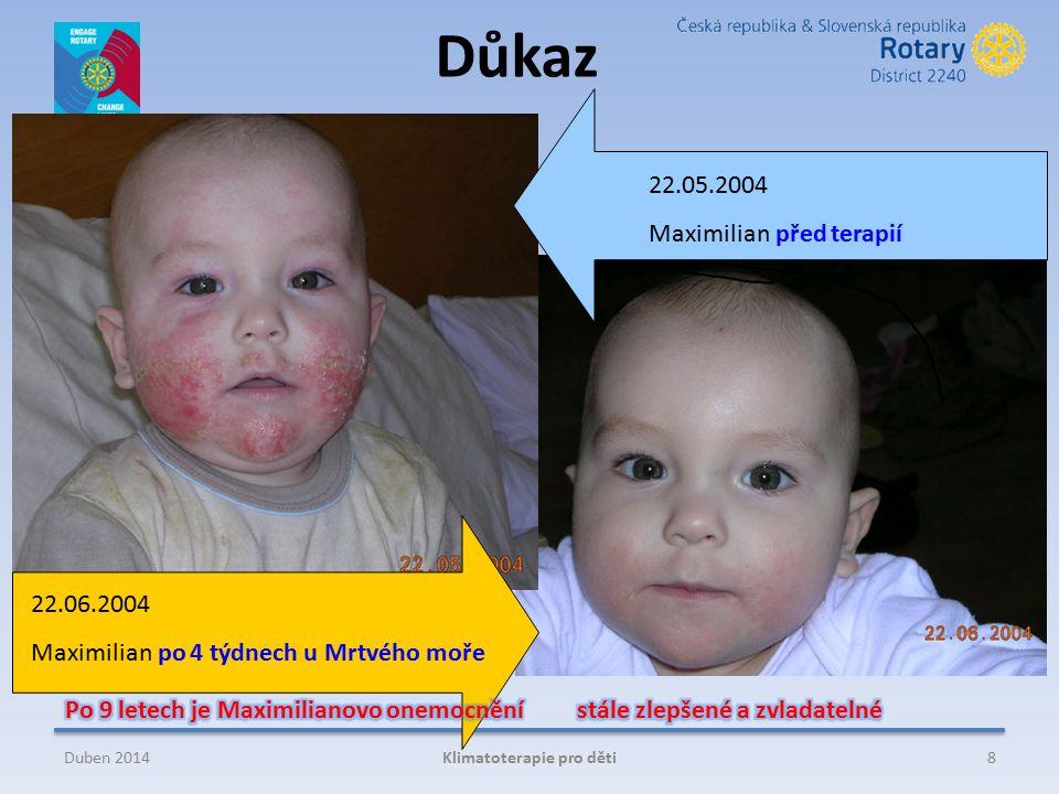 22.06.2004 Maximilian po 4 týdnech u Mrtvého moře 22.05.2004 Maximilian před terapií 8Klimatoterapie pro dětiDuben 2014 Důkaz
