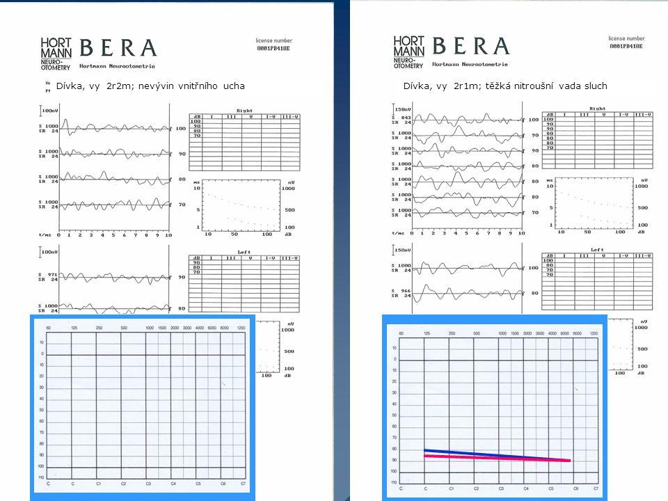 Dívka, vy 2r2m; nevývin vnitřního uchaDívka, vy 2r1m; těžká nitroušní vada sluch