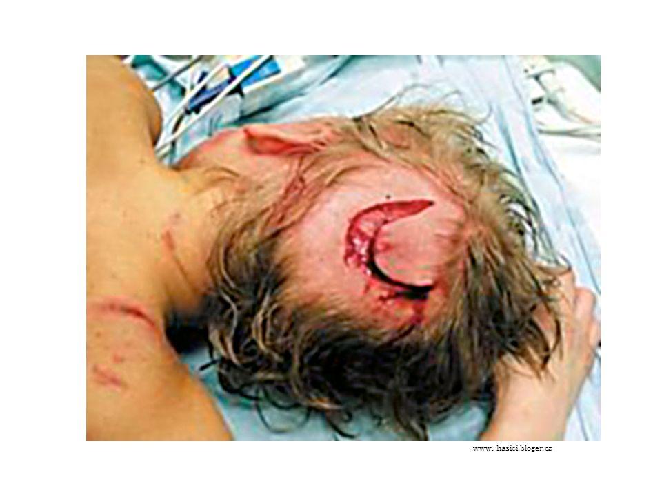 Pokousání psem První pomoc při pokousání psem: - ošetření krvácení přiložením tlakové obvazu, sterilního krytí.