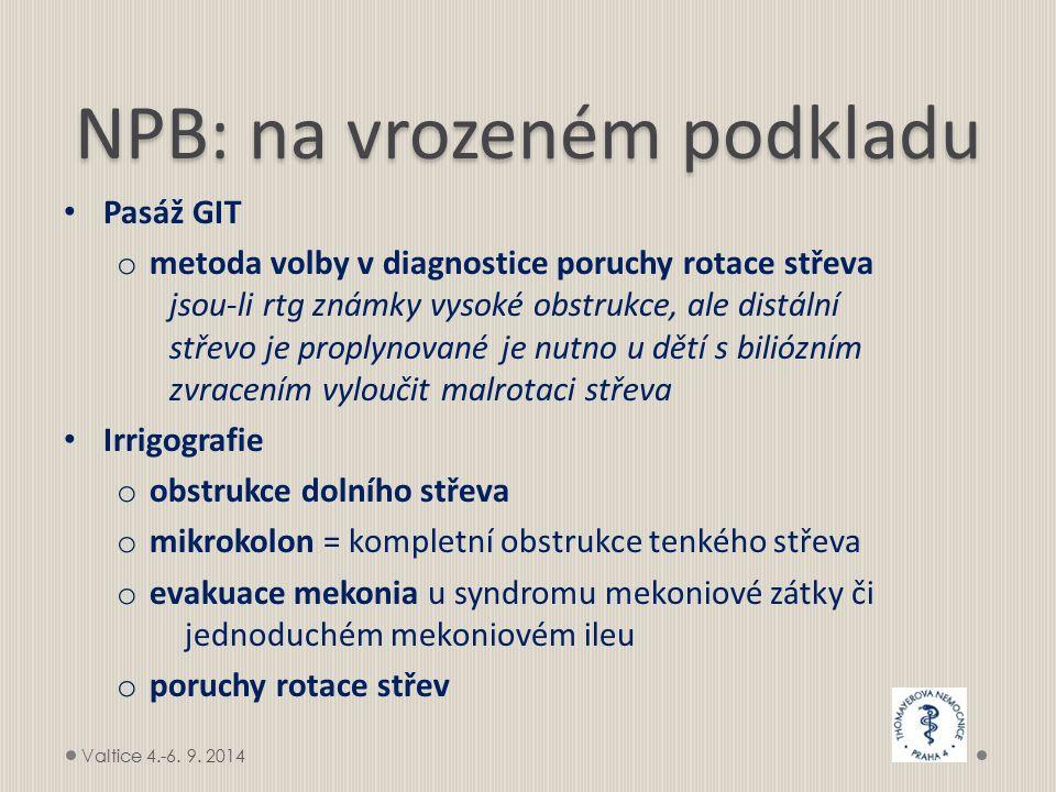 NPB: na vrozeném podkladu Pasáž GIT o metoda volby v diagnostice poruchy rotace střeva jsou-li rtg známky vysoké obstrukce, ale distální střevo je proplynované je nutno u dětí s biliózním zvracením vyloučit malrotaci střeva Irrigografie o obstrukce dolního střeva o mikrokolon = kompletní obstrukce tenkého střeva o evakuace mekonia u syndromu mekoniové zátky či jednoduchém mekoniovém ileu o poruchy rotace střev Valtice 4.-6.