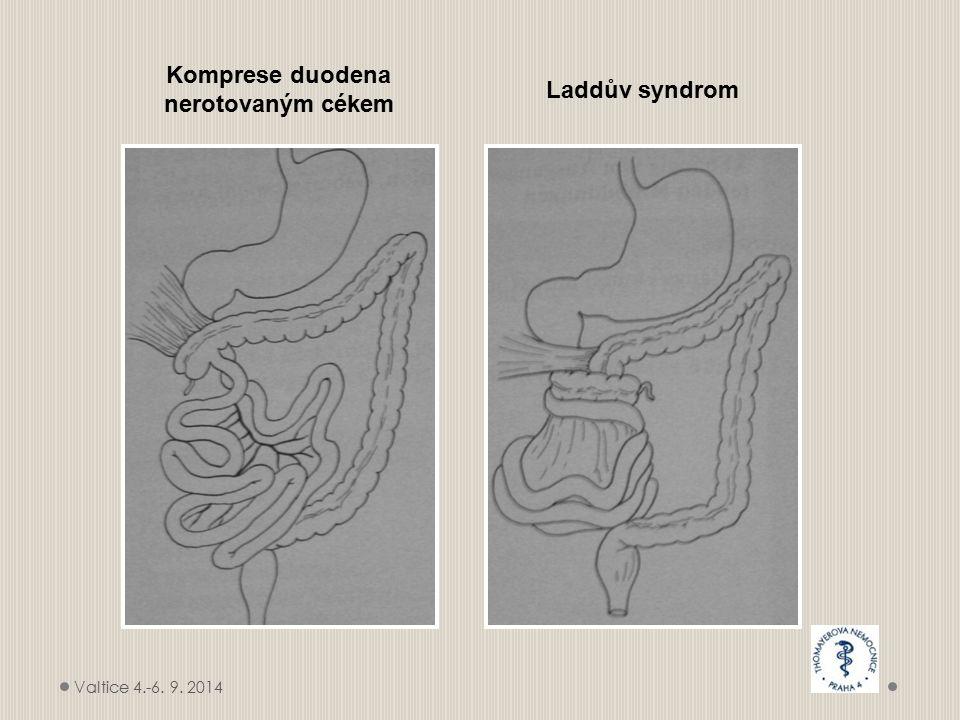 Komprese duodena nerotovaným cékem Laddův syndrom Valtice 4.-6. 9. 2014