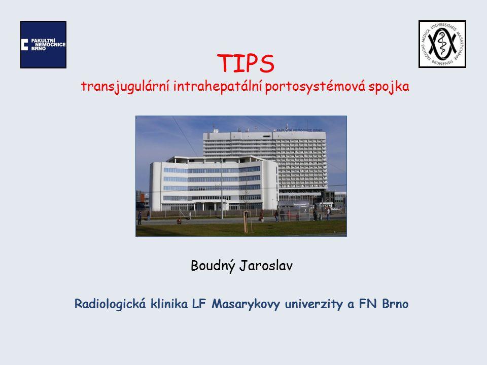 TIPS Historie 1969 – první zmínka o možnosti provedení porto-systémového zkratu endovaskulárně Rosch J, Hanafee WN, Snow H.