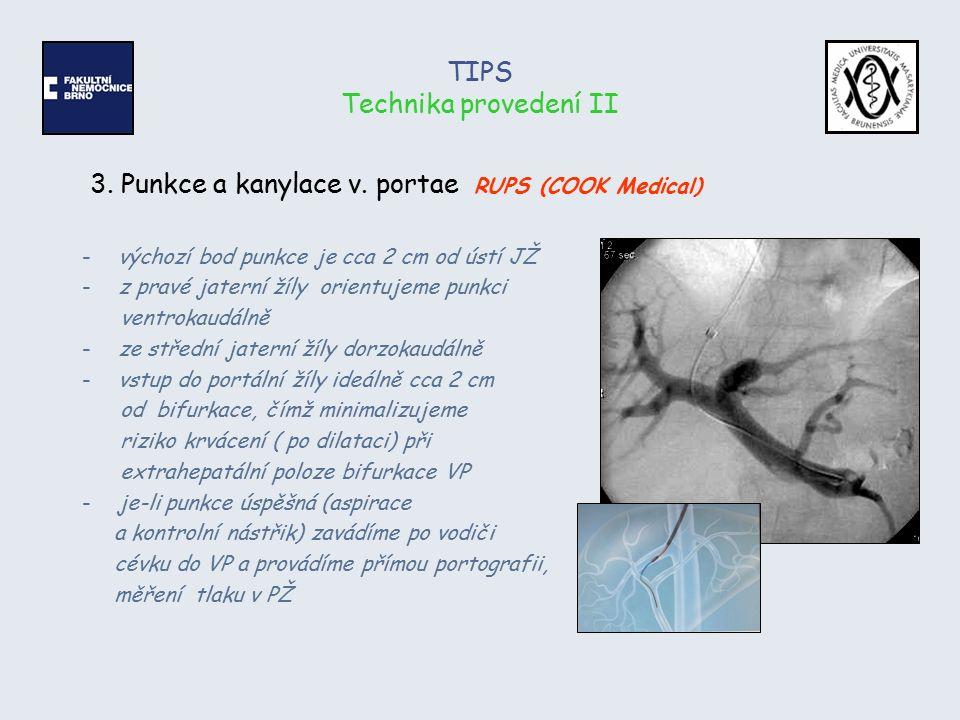 TIPS Technika provedení II 3. Punkce a kanylace v. portae RUPS (COOK Medical) -výchozí bod punkce je cca 2 cm od ústí JŽ -z pravé jaterní žíly orientu