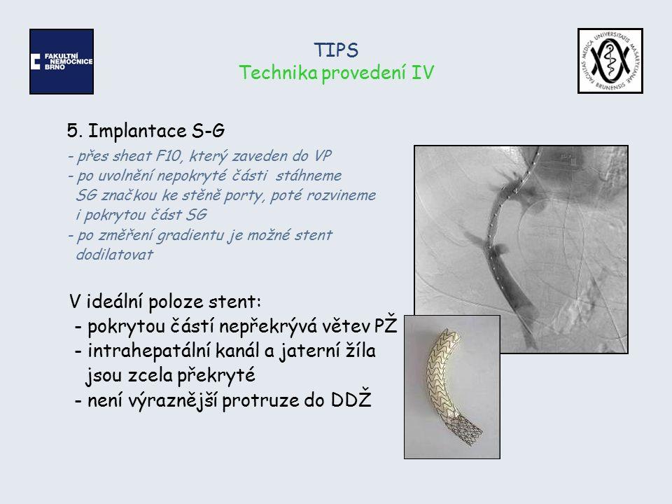 TIPS Technika provedení IV 5. Implantace S-G - přes sheat F10, který zaveden do VP - po uvolnění nepokryté části stáhneme SG značkou ke stěně porty, p